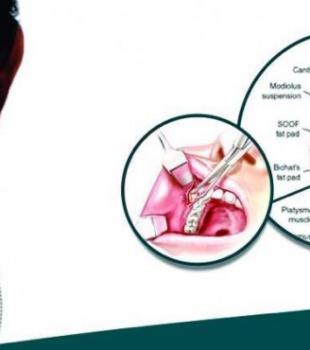 Você sabe o que é Bichectomia?