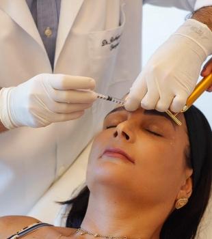 Botox: minha aplicação